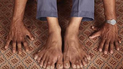 दुनिया में सबसे ज्यादा उंगलियों होने का वर्ल्ड रिकॉर्ड